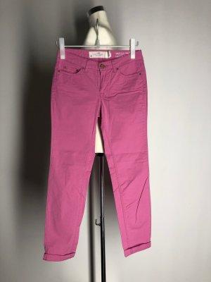 H&M L.O.G.G. Pantalone chino rosa Cotone