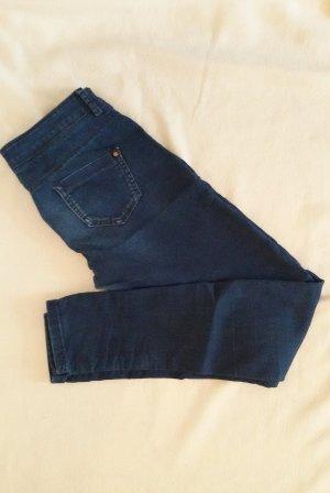 Super Skinny Jeans  Knackpo Shape